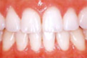 ホワイトニング(歯の漂白)