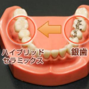 目立つ銀歯を白い歯に!